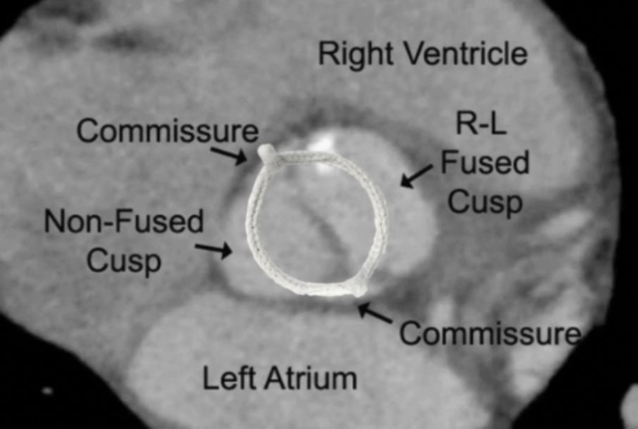 HAART 200 simplifying BAV repair with three-dimensional annuloplasty