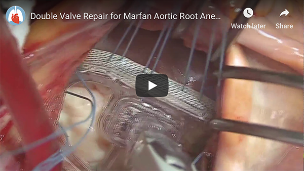 Double Valve Repair for Marfan Aortic Root Aneurysm and Bileaflet (Barlow's) Mitral Valve - abstract and video on CTSNet.org