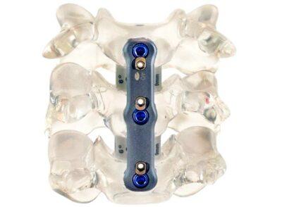 Zavation Midline Cervical Plate