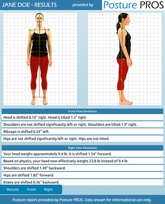 Posture Analysis, Posture Screen by Posture PROS Online Posture Screens