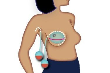 Managing Your Surgical Drains Following Breast Surgery