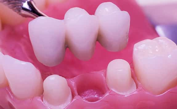 Dental Crowns in Roswell Georgia