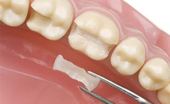 Dental Fillings in Roswell Georgia
