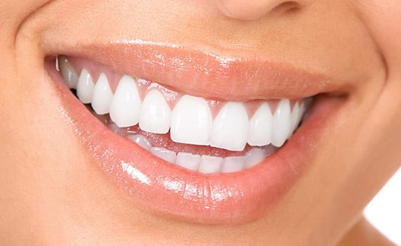 Teeth Whitening in Roswell GA