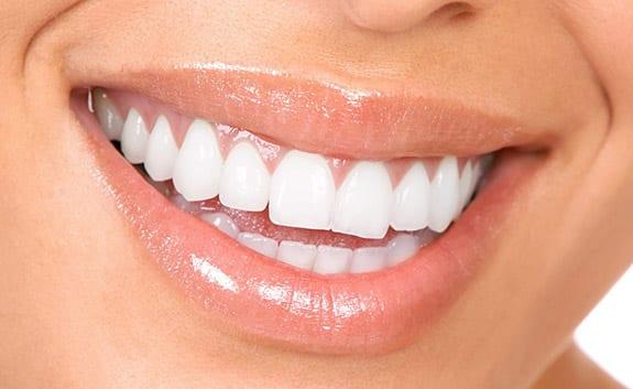 Teeth Whitening in Roswell GA