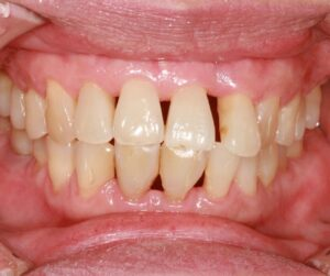 Receding gums - cases and treatment. At Sunshine Smiles Dentistry- Marietta Roswell Dental Care