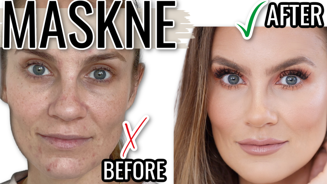 How to GET RID of Maskne: Must-Haves for Mask Acne