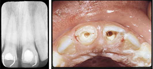 Dentin Bridge_Case2