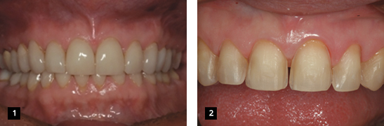 Kleer-Veneer_clinical#1_1-2