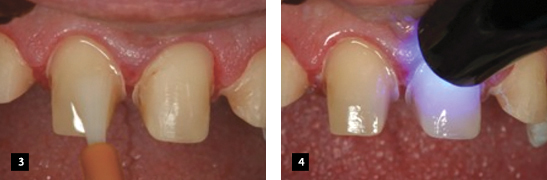 Kleer-Veneer_clinical#2_3-4