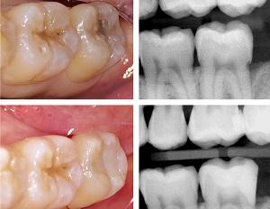 Heroic Dentistry Dr. Robert Ho