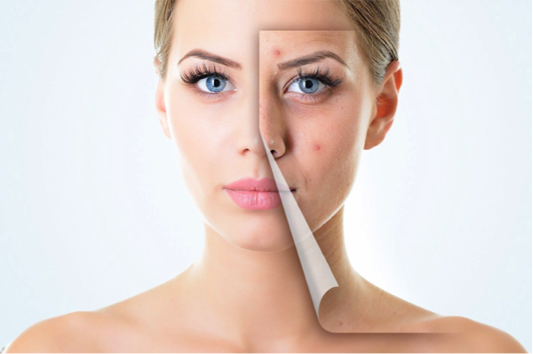 skin renewal