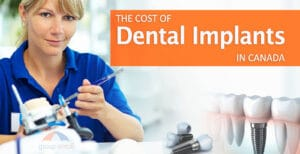Cost of dental implants in Canada banner by Group Enroll