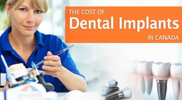 Cost of dental implants in Canada