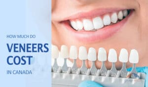 Dental Veneers Cost in Canada article image by GroupEnroll