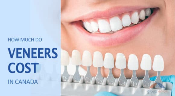 What are Dental Veneers and How Much Do They Cost in Canada?