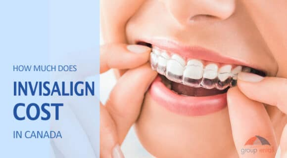 How Much Does Invisalign Cost in Canada?