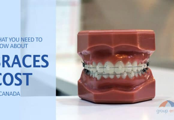 What you need to know about Braces Cost in Canada