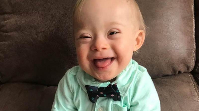2018 Gerber Baby Has Down Syndrome Adorable Smile