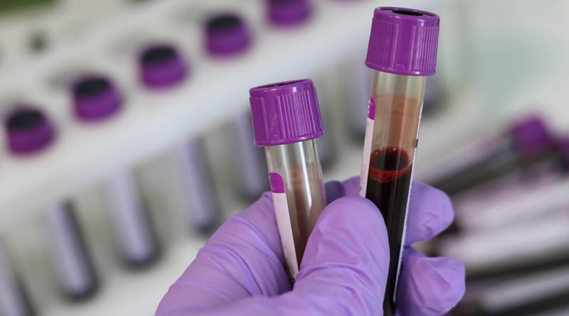 Blood Test May Help Identify & Treat PTSD More Effectively