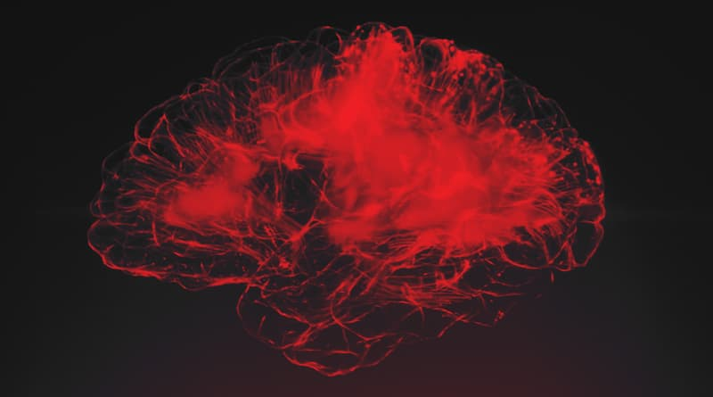 New Alzheimer's Study Explores Neuroinflammation And How To Possibly Prevent It Squoosh