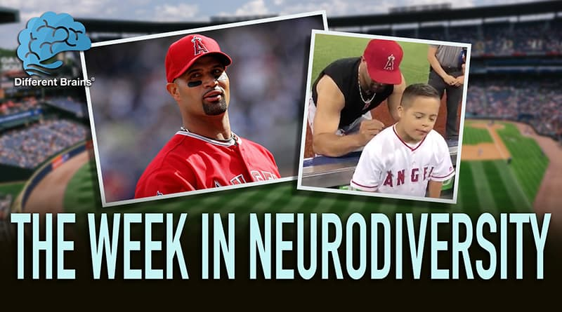 How MLB Star Albert Pujols Made The Day Of A Fan With Down Syndrome