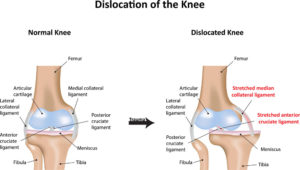 Knee Dislocation