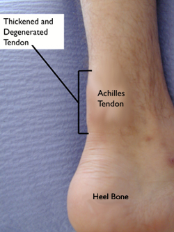 Achilles Tendonitis Coral Gables Foot Care Miami