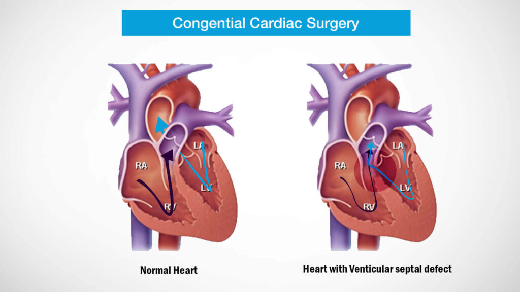 Congenital Cardiac Surgery in Hyderabad