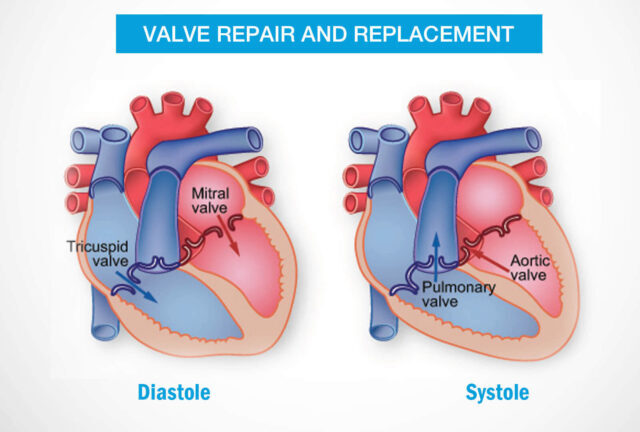 Heart Valve replacement in hyderabad