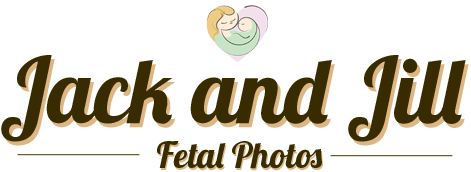 3D and 4D Baby Ultrasound | Jack and Jill Fetal Photos | Phoenix Prenatal Imaging
