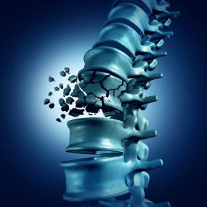 Spinal Fracture and traumatic vertebral injury