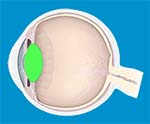 Cataract & Lens Problems