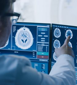 Doctor looking at brain scans on computer screen