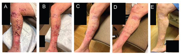 Photographs of lesions in Cohort 2 Patient 9 A prior to PVSRIPO administration