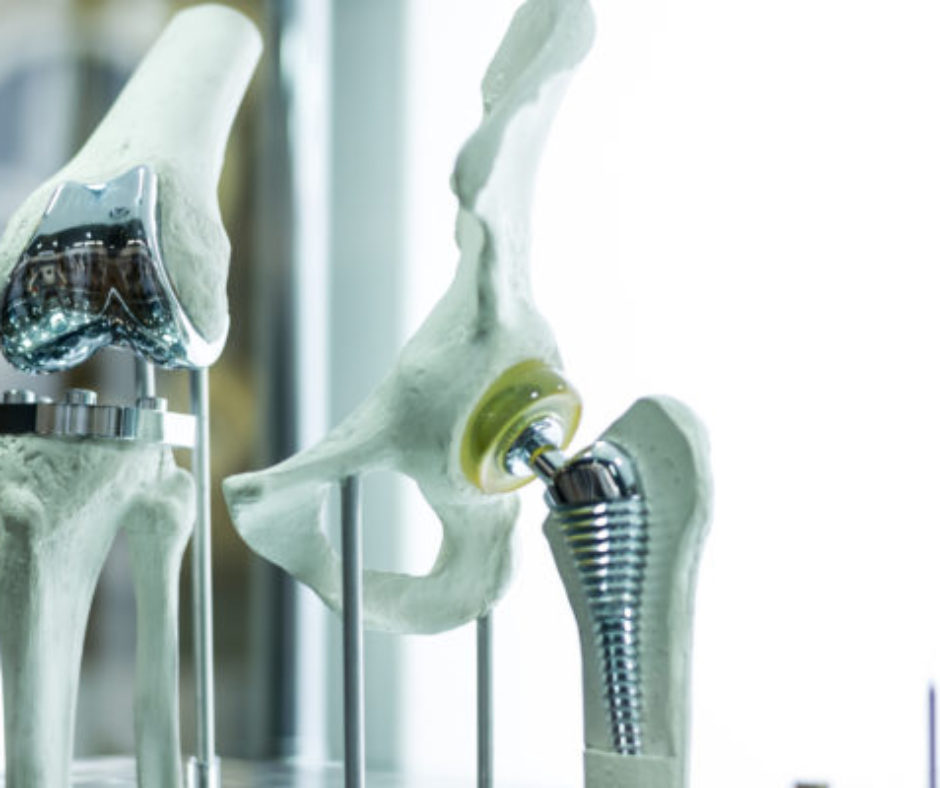 Get The Best Results From Your Joint Replacement, Get Physical Therapy
