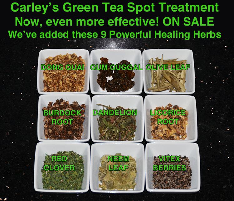 Carley's Green Tea Spot Treatment