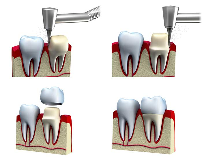 South Tampa Dental Crown - Photo of the stages of a dental crown.