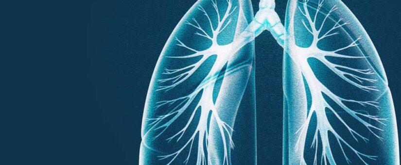 COVID-19 Respiratory Distress Workflow Hypothesis