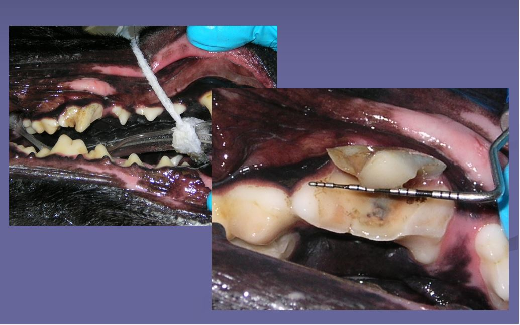 Fractured Teeth