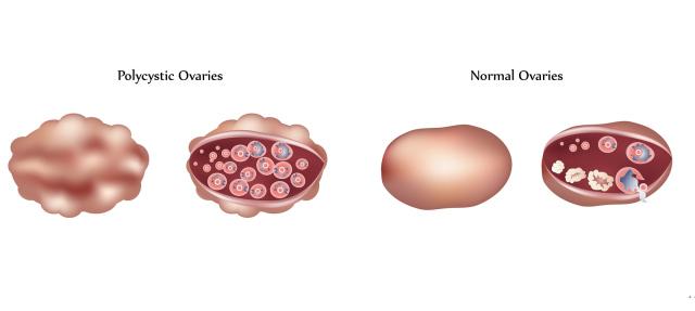PCOS, infertility