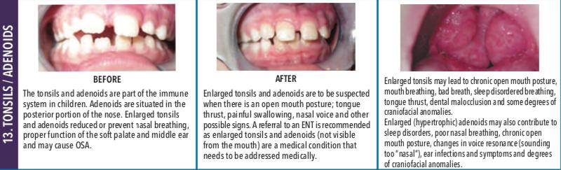 Tonsils:Adenoids