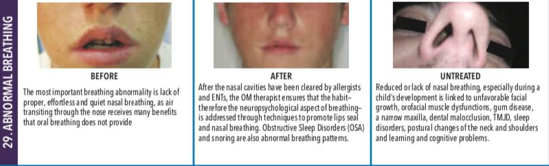 Abnormal Breathing