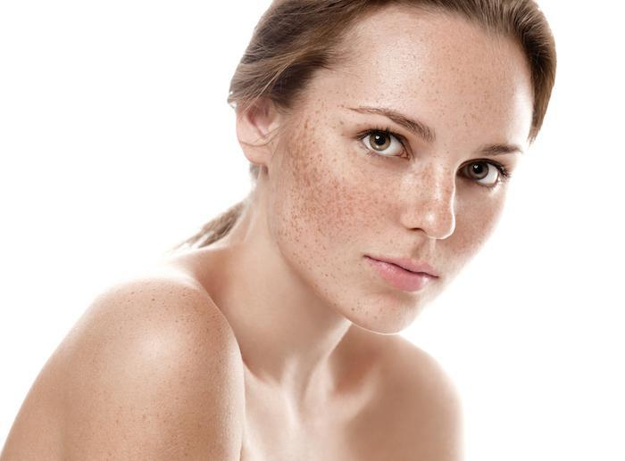 What is Skin Resurfacing and Who Can It Help?