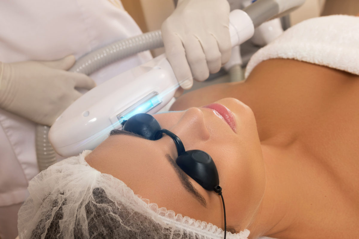 Why Choose IPL Treatment for Pigmentation Issues?
