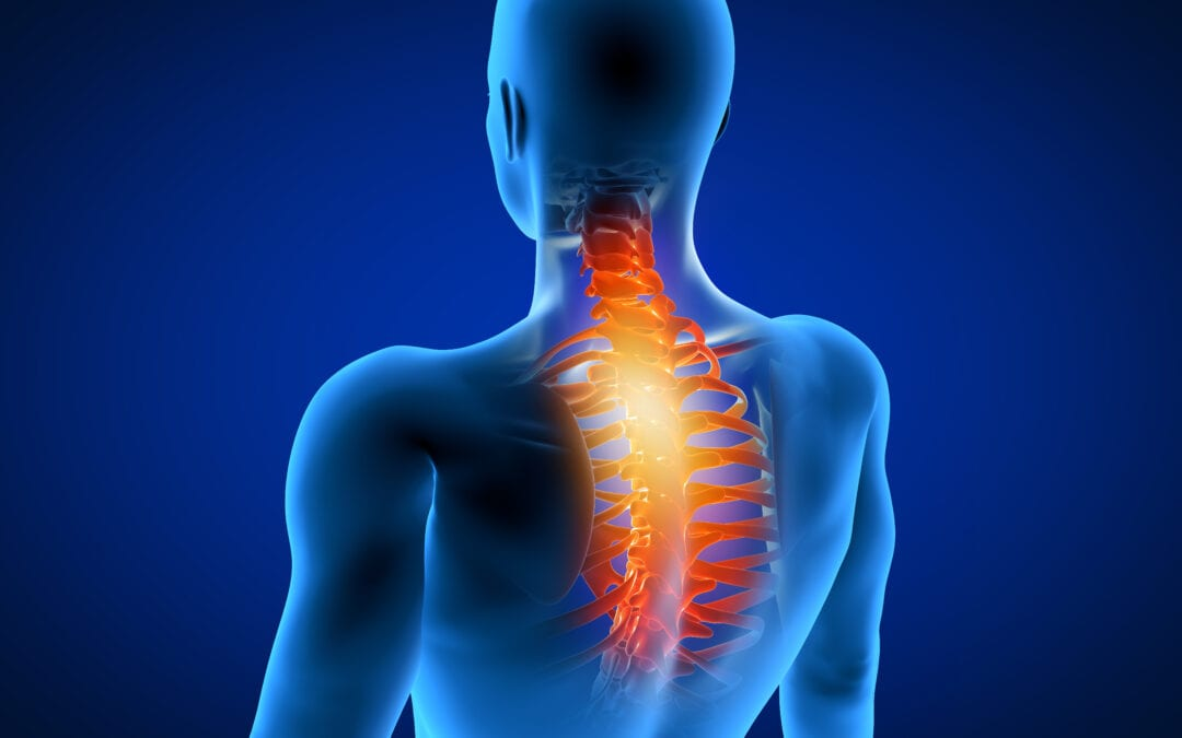 3 common causes of neck pain