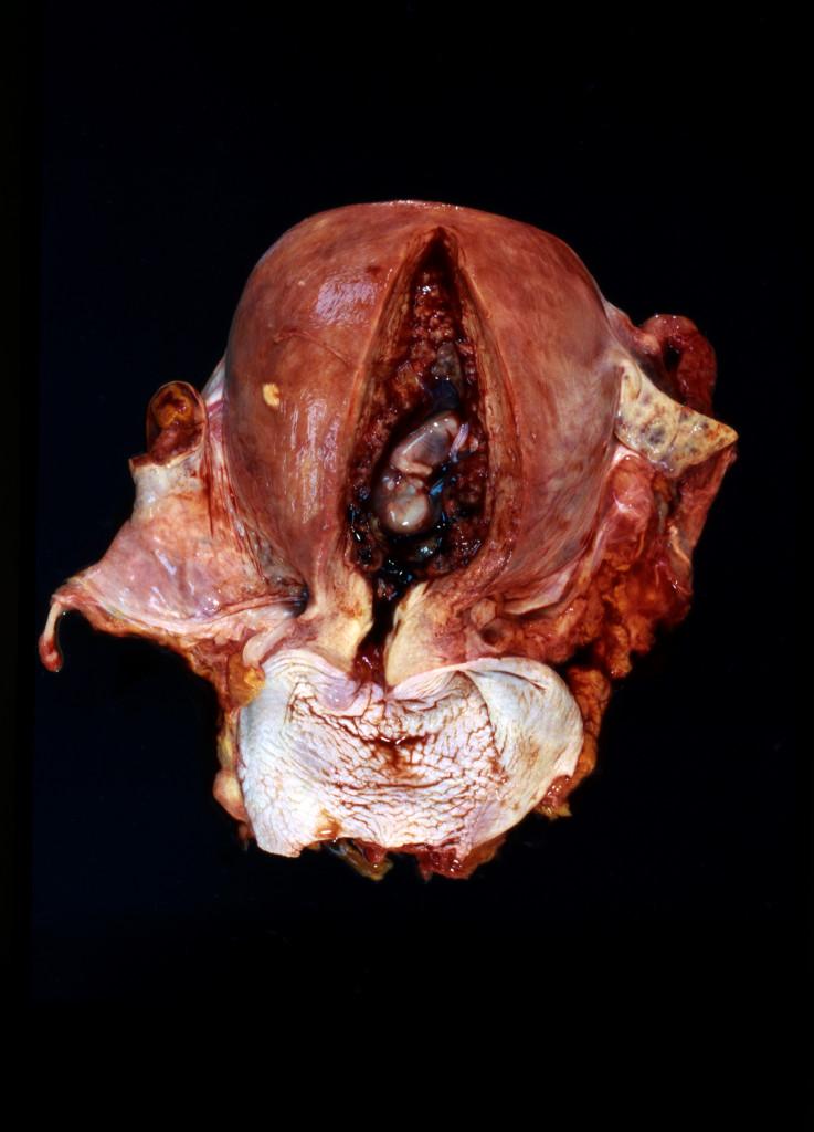 GSW to Uterus Shiva Gallery Art Image
