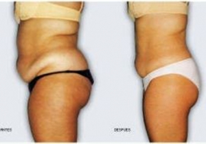 Cavi Lipo Before-After 1