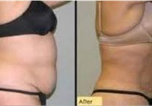 Cavi Lipo Before-After 9