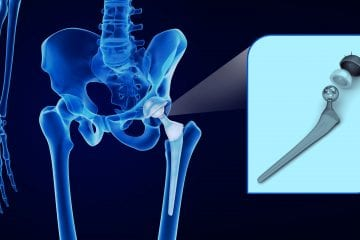 Artificial Hips
